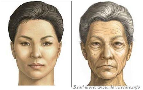 мускульный тип старения фото