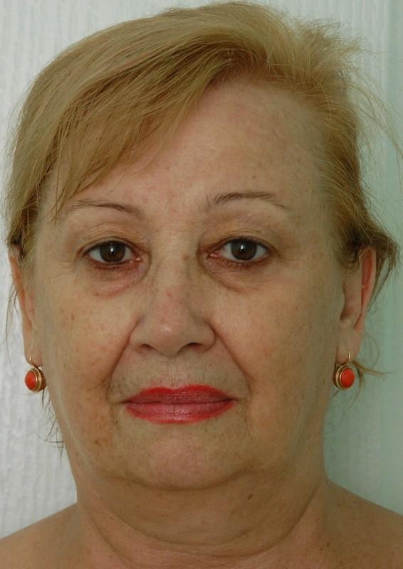 Подтяжка лица пенза